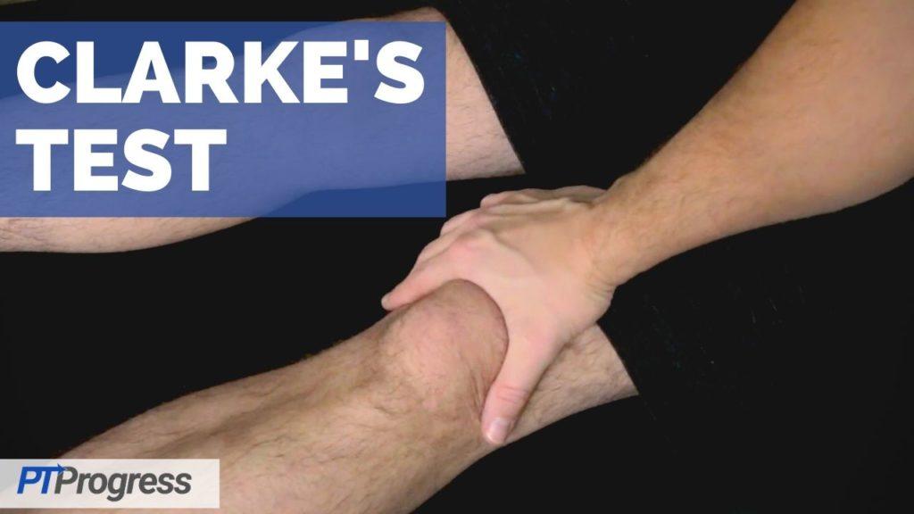 clarkes test